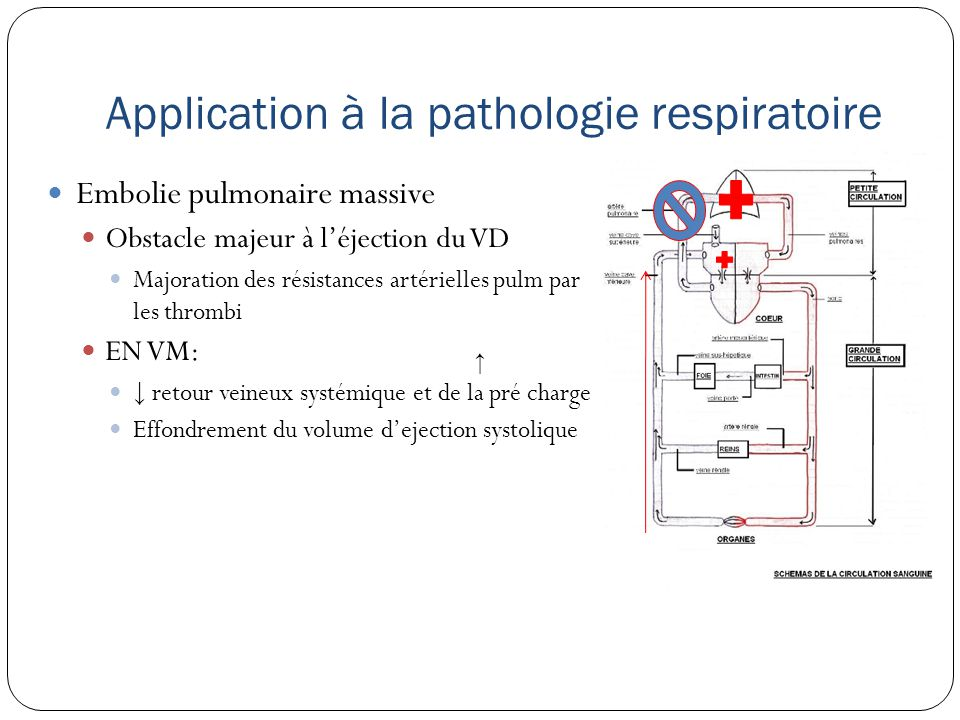 Application à la pathologie respiratoire