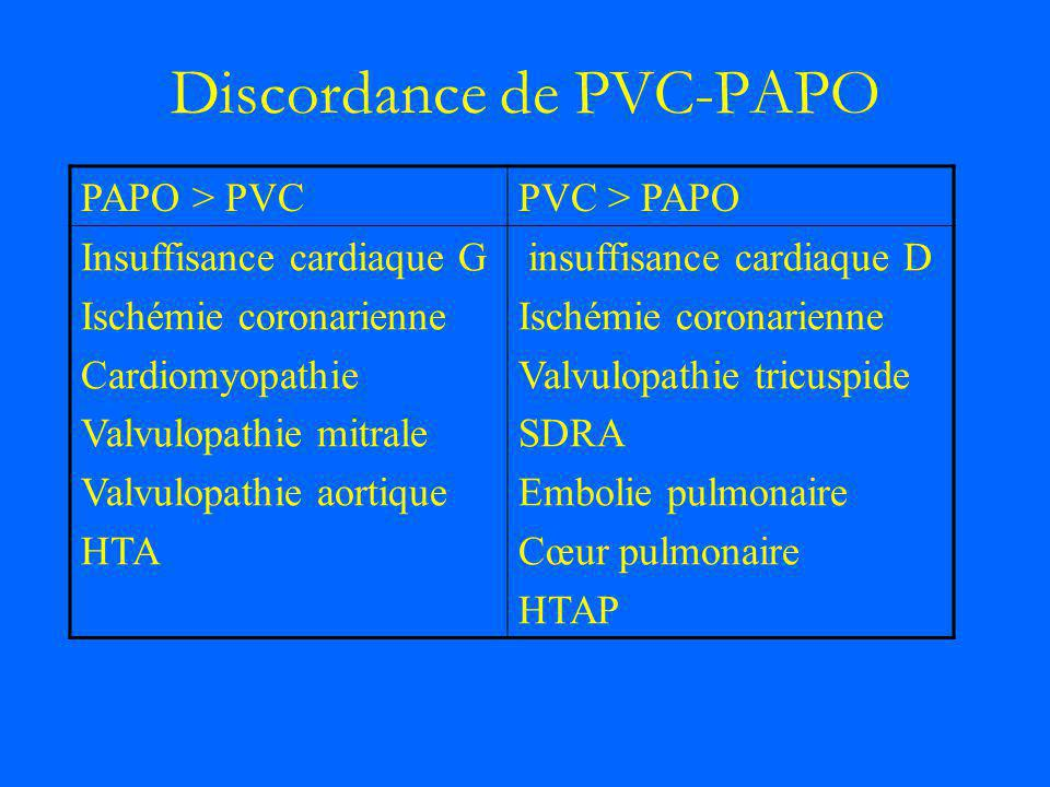 Discordance de PVC-PAPO