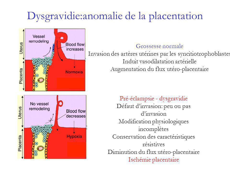Dysgravidie:anomalie de la placentation