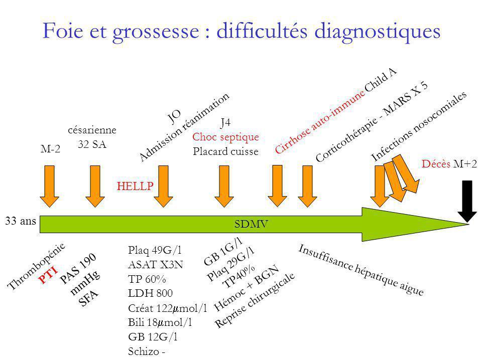 Foie et grossesse : difficultés diagnostiques