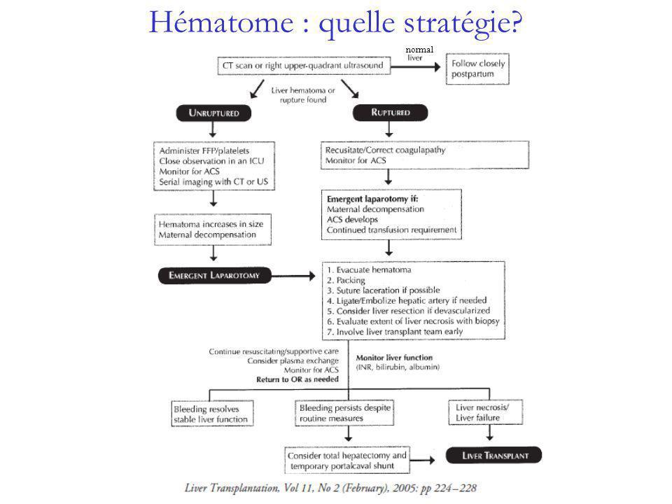 Hématome : quelle stratégie