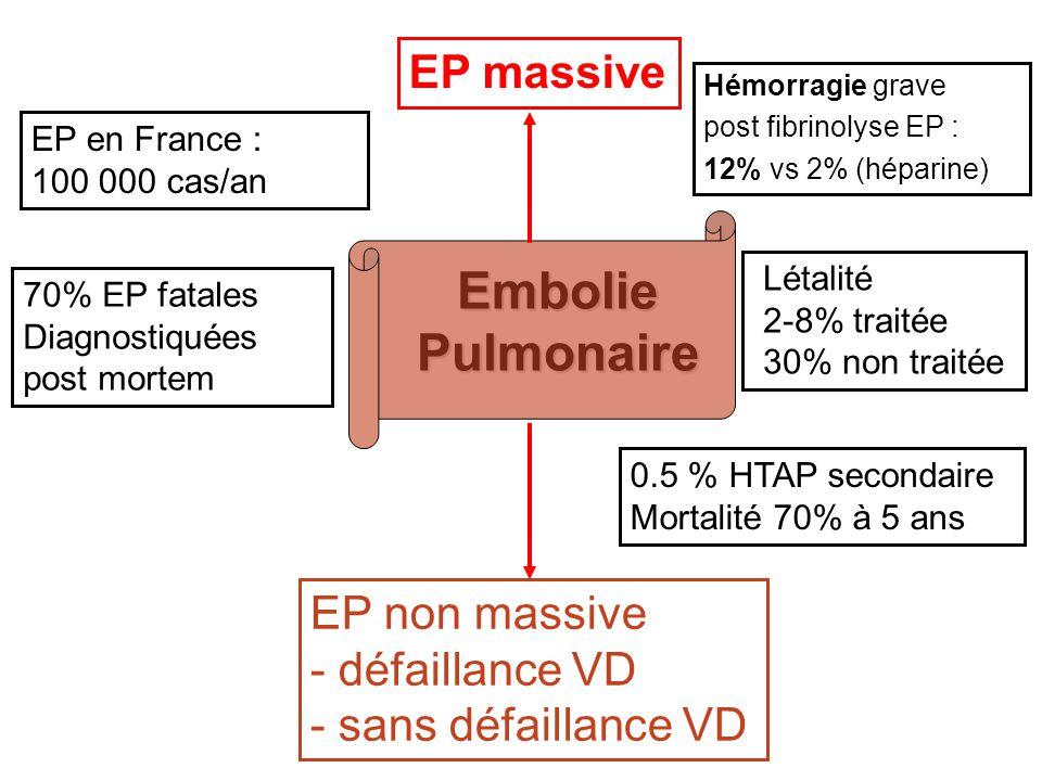 Embolie Pulmonaire EP massive EP non massive - défaillance VD