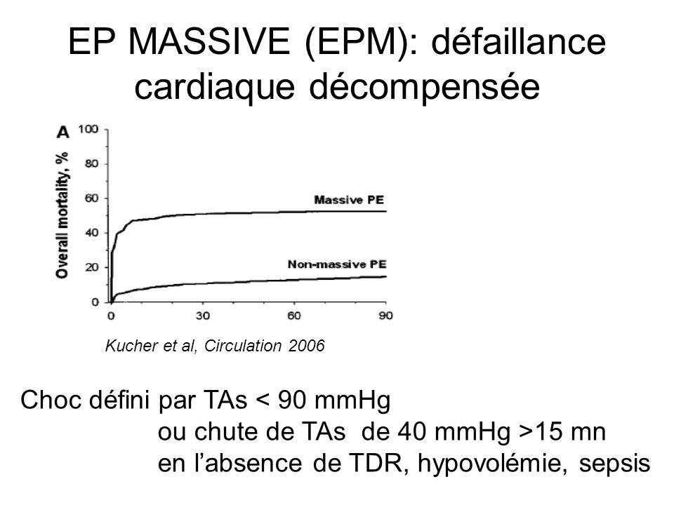 EP MASSIVE (EPM): défaillance cardiaque décompensée