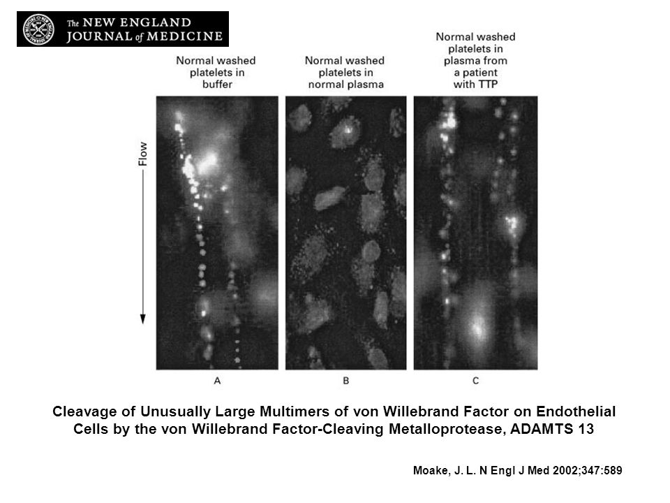 Cleavage of Unusually Large Multimers of von Willebrand Factor on Endothelial Cells by the von Willebrand Factor-Cleaving Metalloprotease, ADAMTS 13