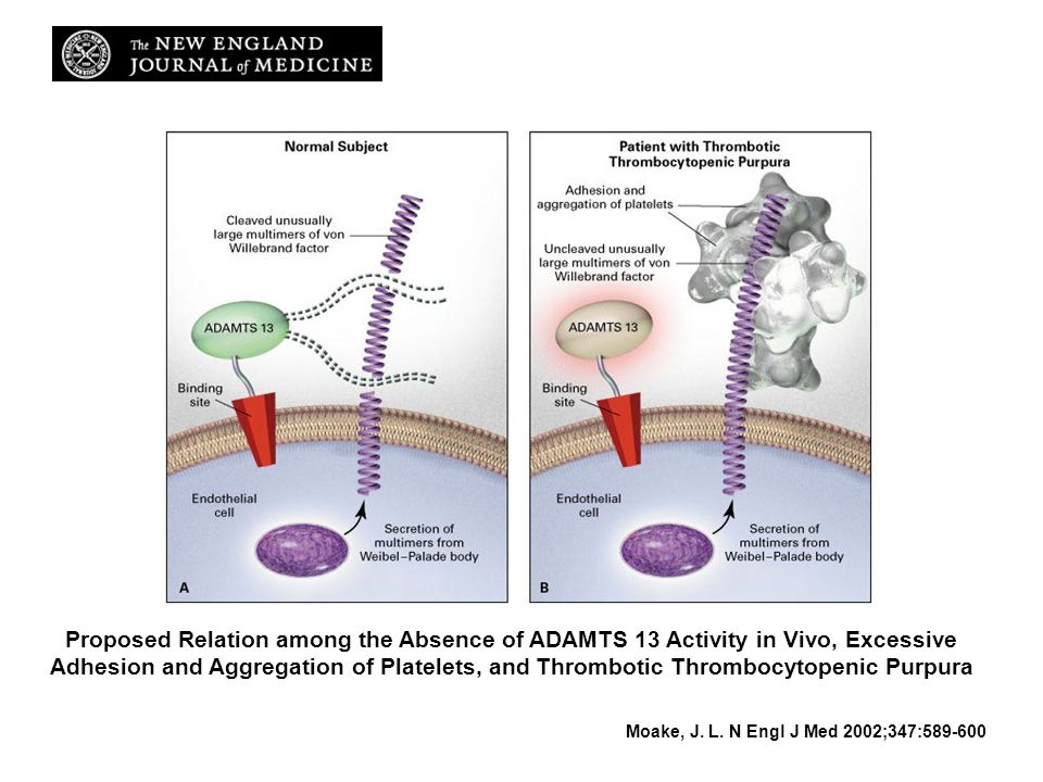 Proposed Relation among the Absence of ADAMTS 13 Activity in Vivo, Excessive Adhesion and Aggregation of Platelets, and Thrombotic Thrombocytopenic Purpura