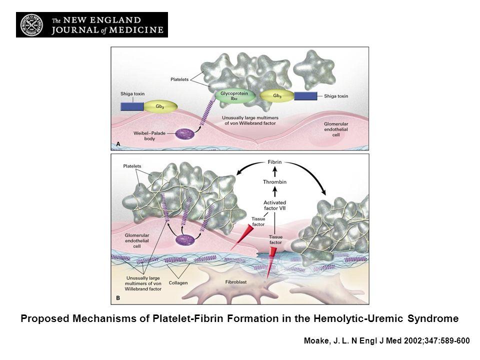 PHYSIOPATHOLOGIE A : Activation Pq par toxine, secretion vWf haut poids, adhésion Pq. Favorisé par inhibition d'ADAMTS13 par toxine.