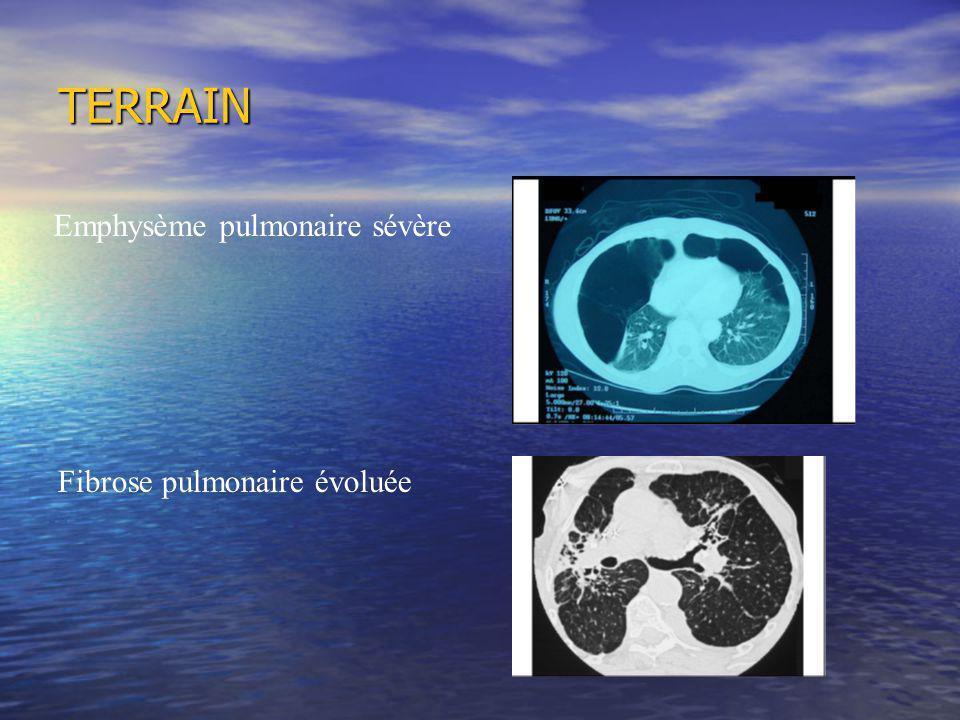 TERRAIN Emphysème pulmonaire sévère Fibrose pulmonaire évoluée