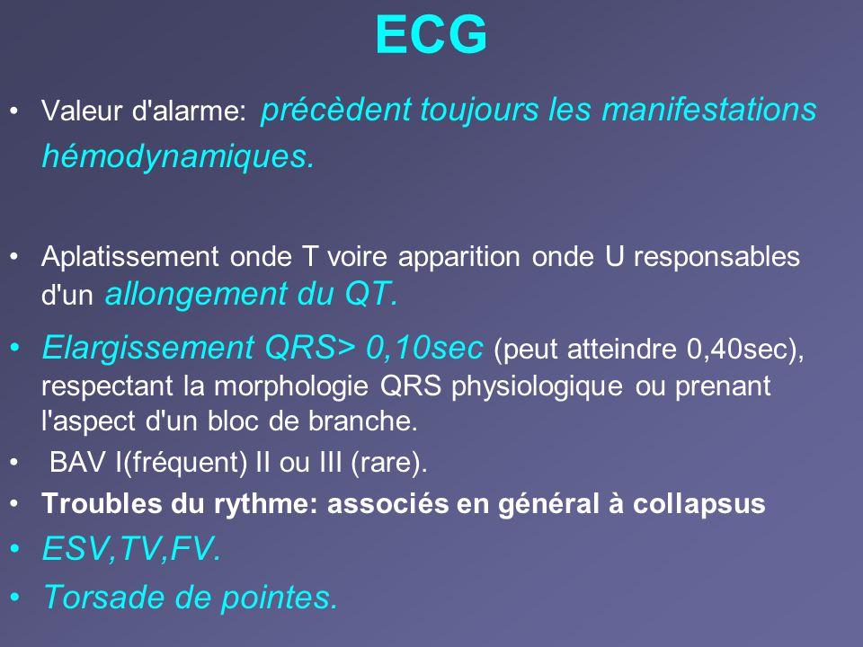 ECG Valeur d alarme: précèdent toujours les manifestations hémodynamiques.