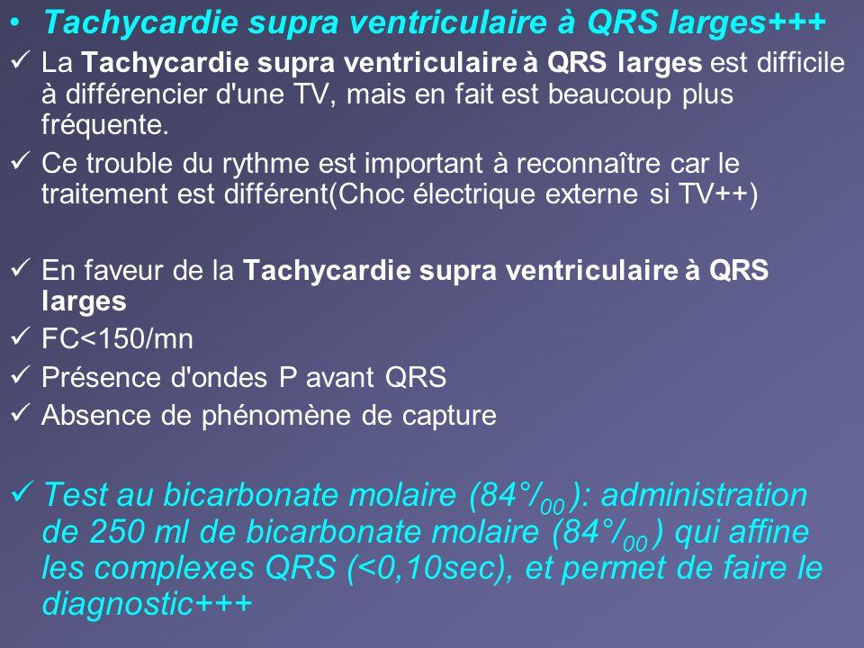 Tachycardie supra ventriculaire à QRS larges+++