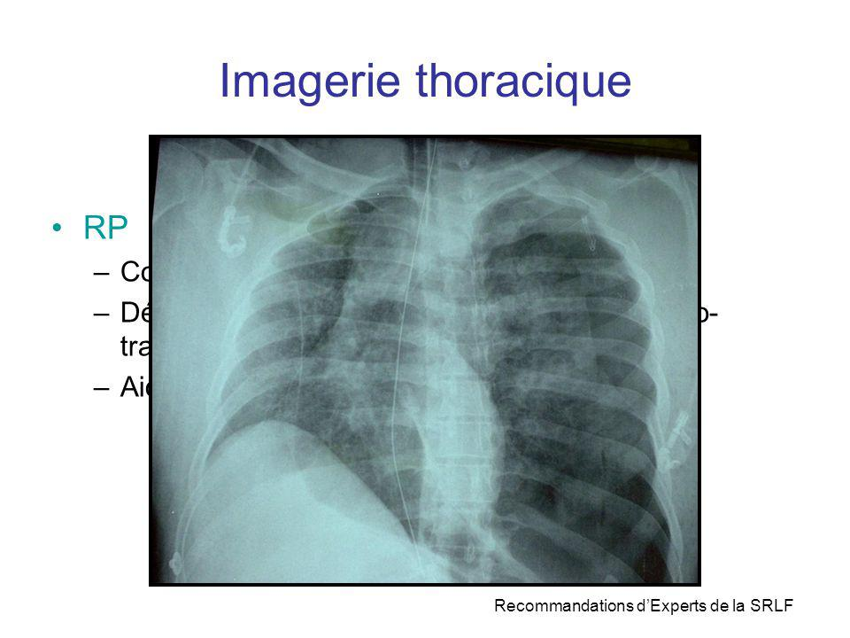 Imagerie thoracique RP Contrôle des gestes invasifs : SI + cathéters