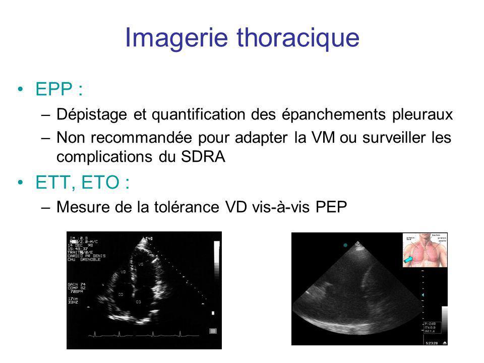 Imagerie thoracique EPP : ETT, ETO :