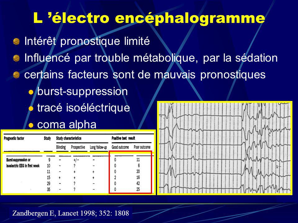 L 'électro encéphalogramme