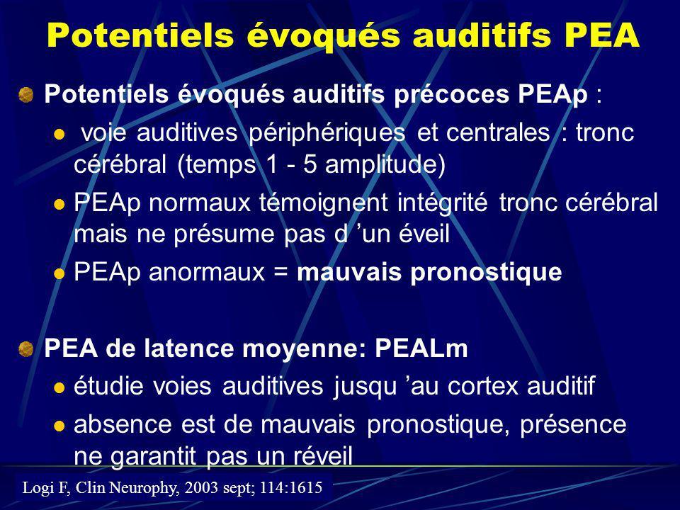 Potentiels évoqués auditifs PEA
