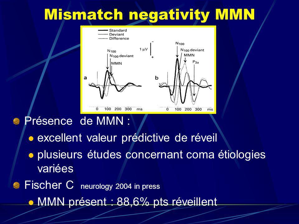 Mismatch negativity MMN