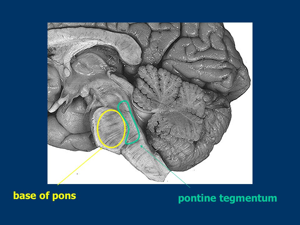 base of pons pontine tegmentum