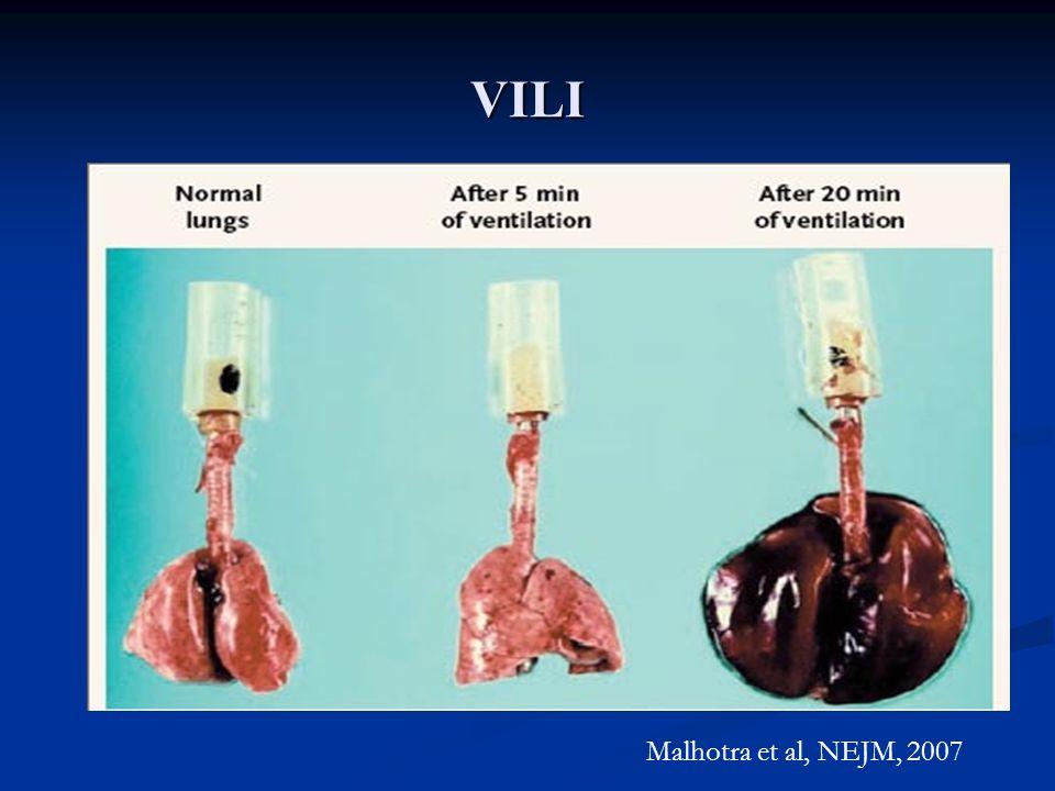 VILI Malhotra et al, NEJM, 2007