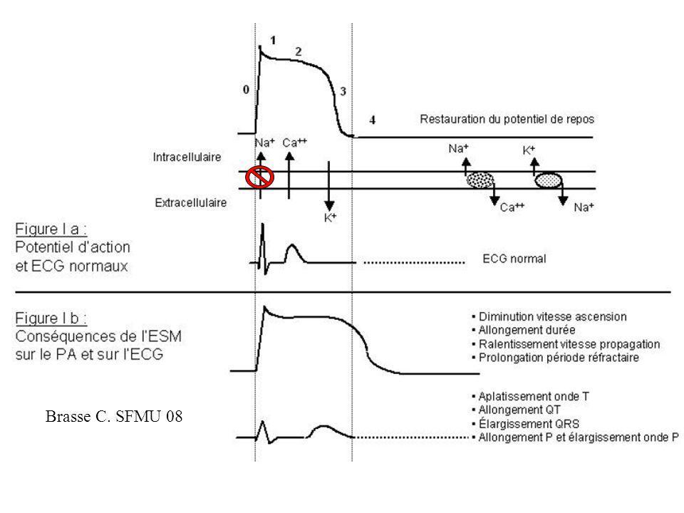 Brasse C. SFMU 08 Phase O diminué: chronotrope négatif