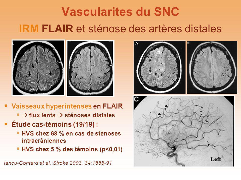 IRM FLAIR et sténose des artères distales