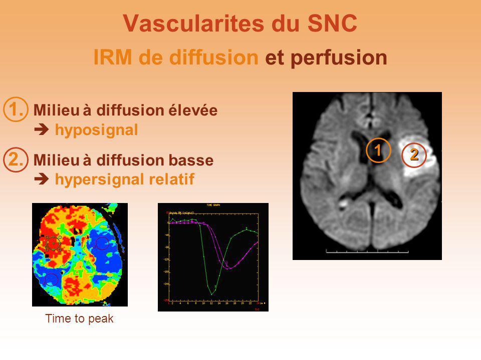 IRM de diffusion et perfusion