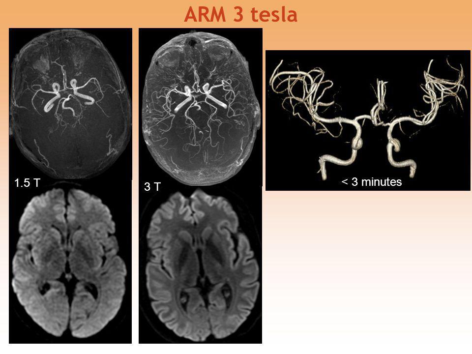 ARM 3 tesla 1.5 T < 3 minutes 3 T 19