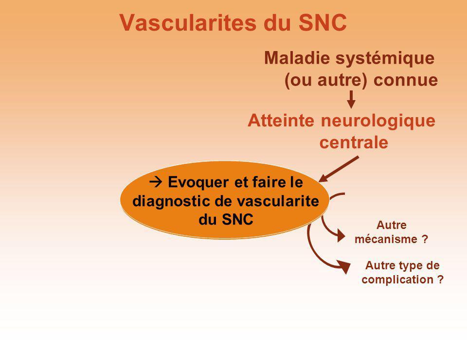Vascularites du SNC Maladie systémique (ou autre) connue
