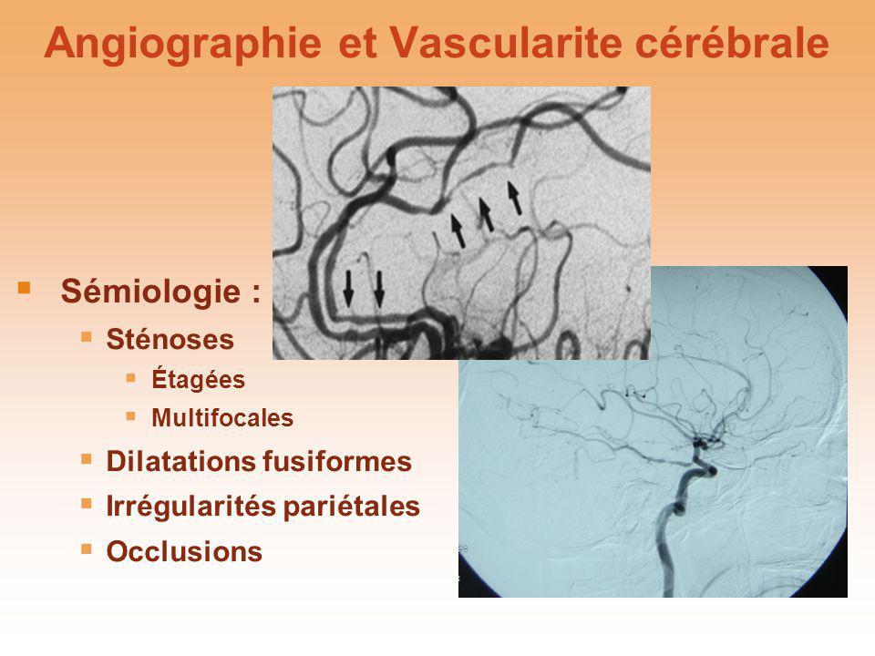 Angiographie et Vascularite cérébrale