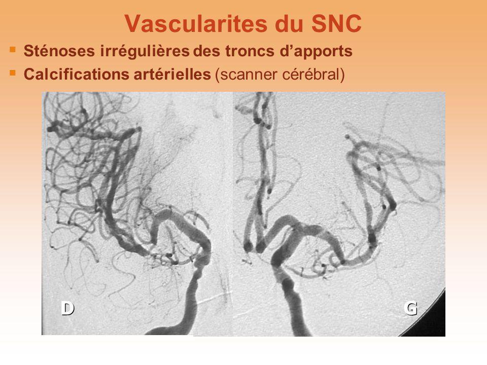Vascularites du SNC D G Sténoses irrégulières des troncs d'apports