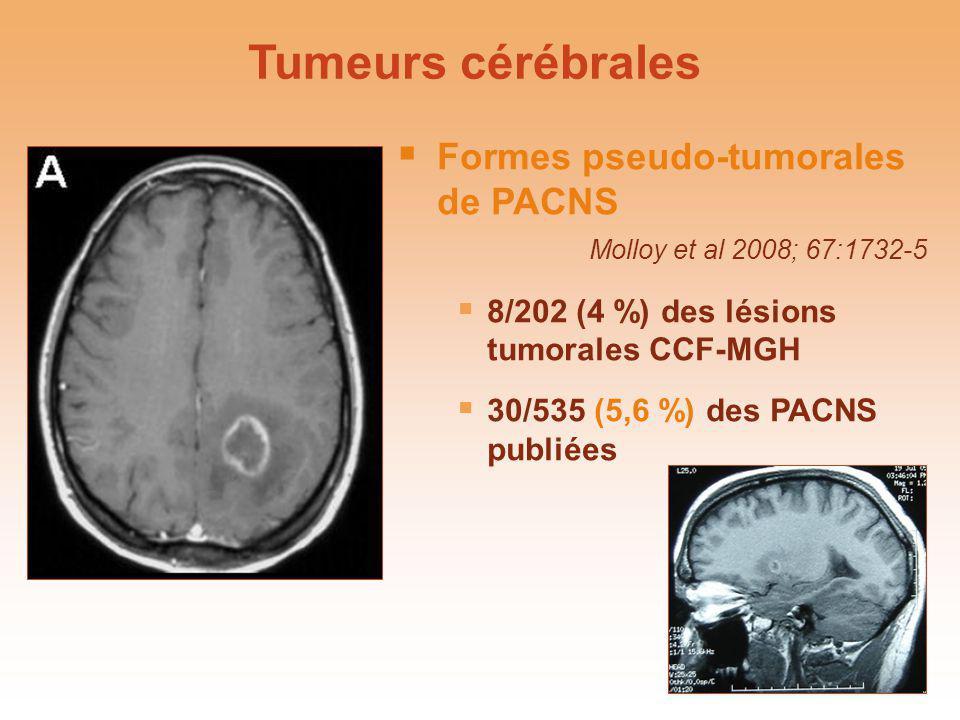 Tumeurs cérébrales Formes pseudo-tumorales de PACNS Molloy et al 2008; 67:1732-5. 8/202 (4 %) des lésions tumorales CCF-MGH.