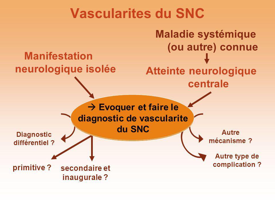 Manifestation neurologique isolée