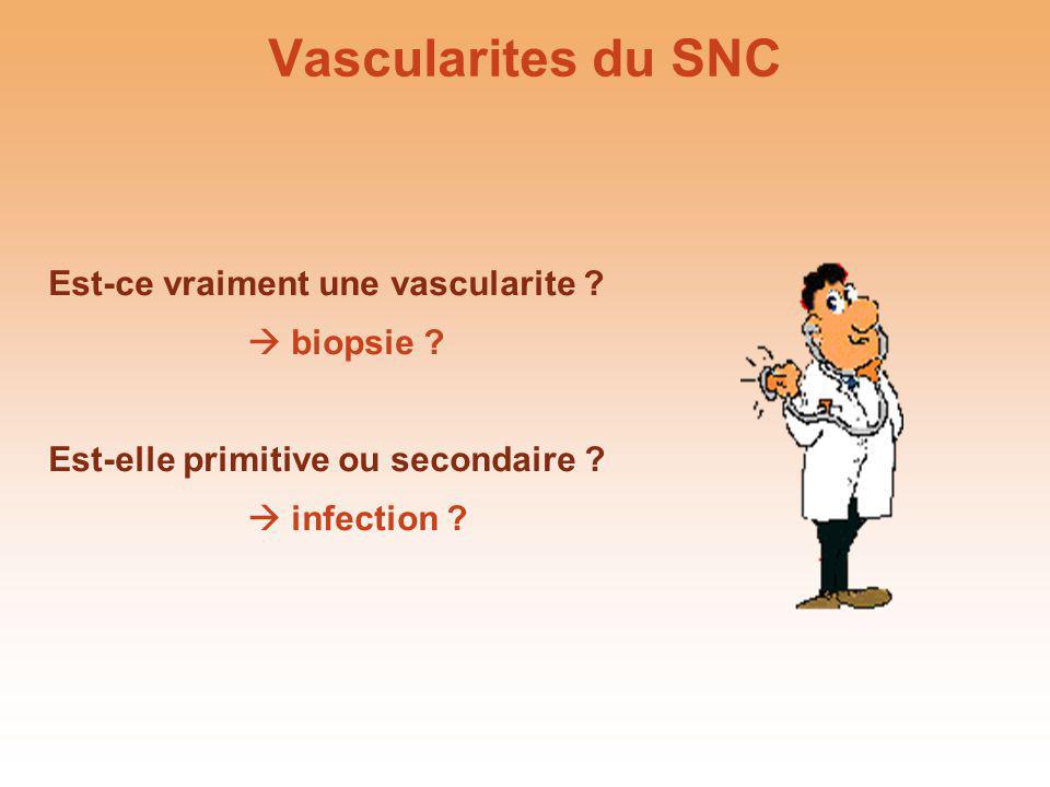 Vascularites du SNC Est-ce vraiment une vascularite  biopsie