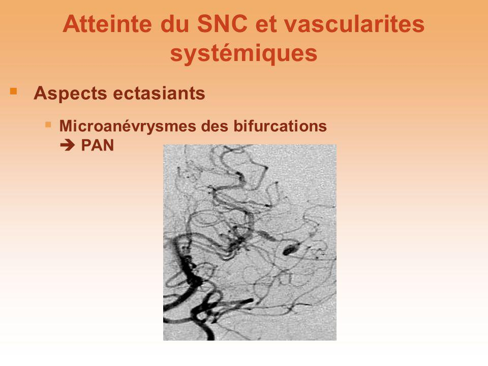 Atteinte du SNC et vascularites systémiques