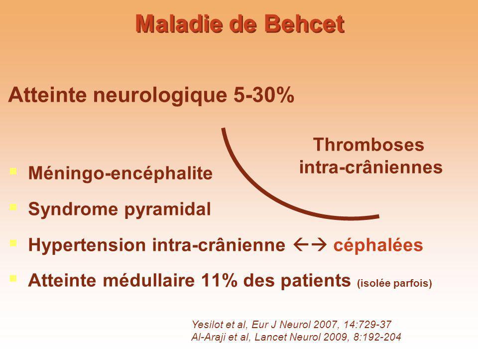 Maladie de Behcet Atteinte neurologique 5-30% Méningo-encéphalite