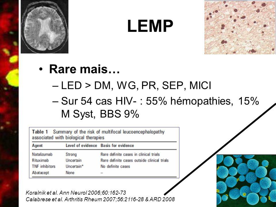 LEMP Rare mais… LED > DM, WG, PR, SEP, MICI