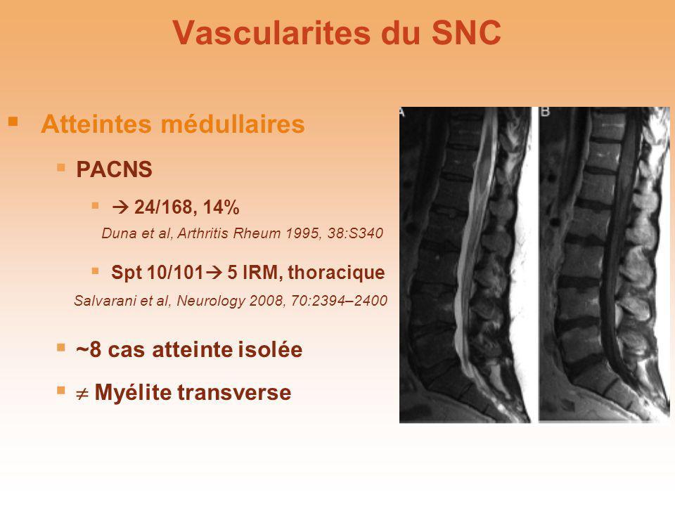 Vascularites du SNC Atteintes médullaires PACNS ~8 cas atteinte isolée