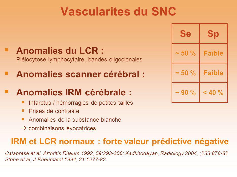 IRM et LCR normaux : forte valeur prédictive négative