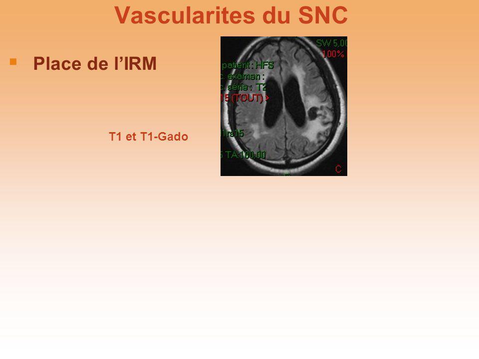 Vascularites du SNC Place de l'IRM T1 et T1-Gado