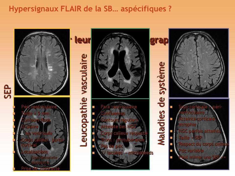 Hypersignaux FLAIR de la SB… aspécifiques
