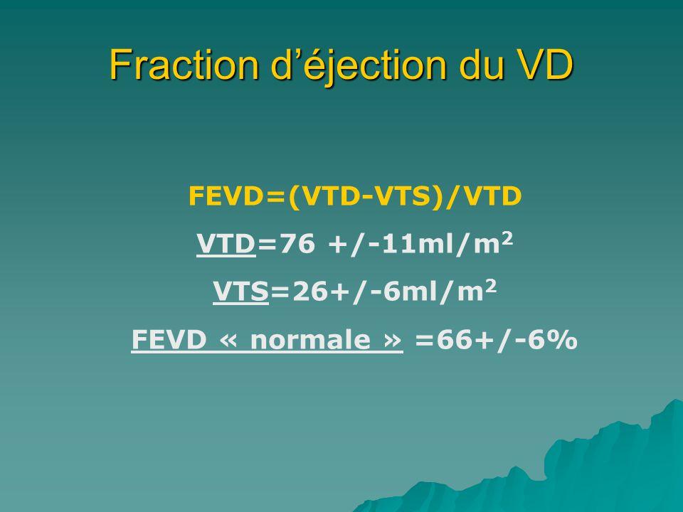 Fraction d'éjection du VD