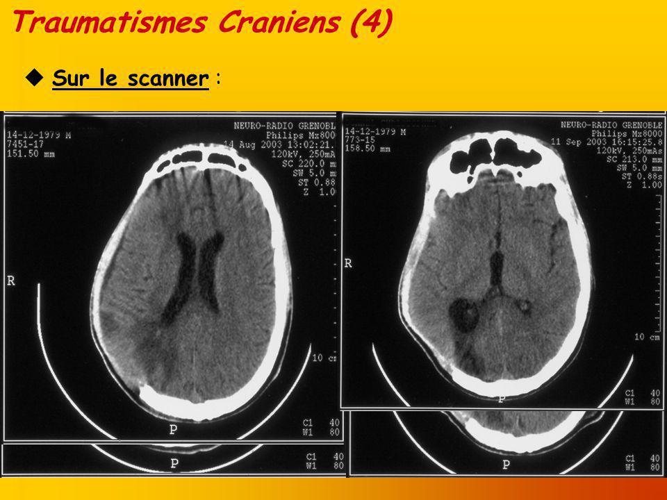 Traumatismes Craniens (4)