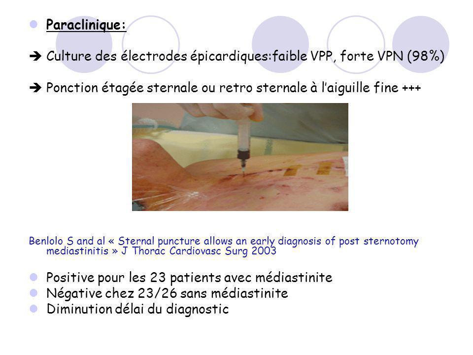  Culture des électrodes épicardiques:faible VPP, forte VPN (98%)