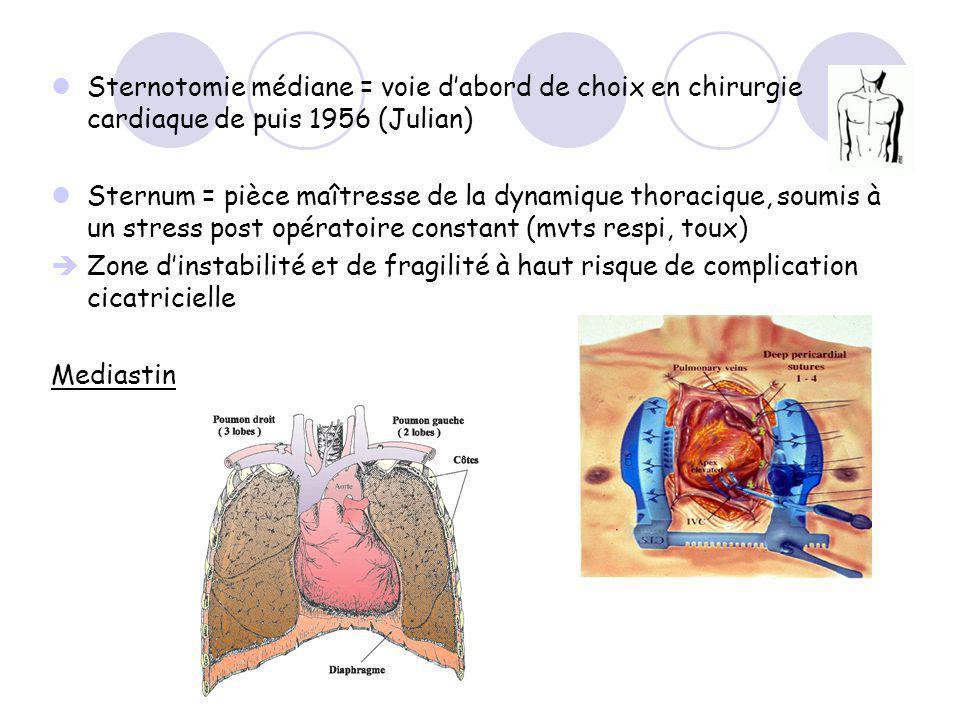 Sternotomie médiane = voie d'abord de choix en chirurgie cardiaque de puis 1956 (Julian)