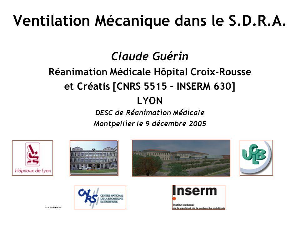 Ventilation Mécanique dans le S.D.R.A.