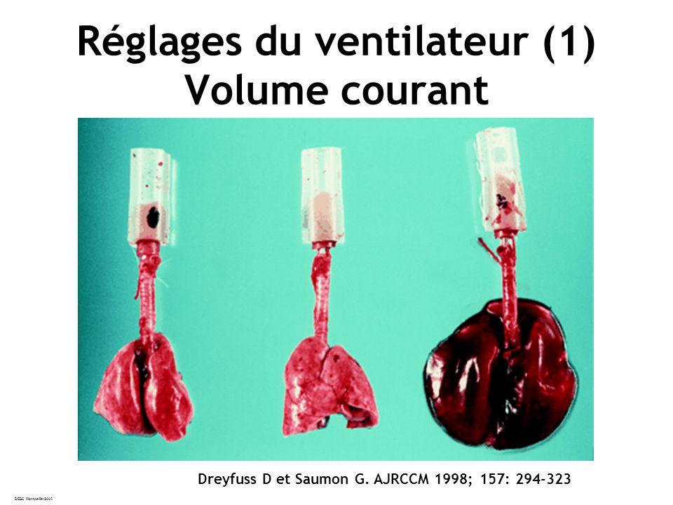 Réglages du ventilateur (1) Volume courant