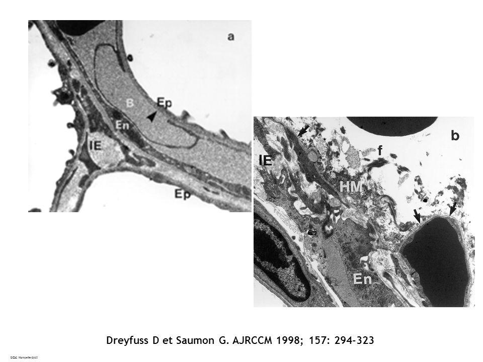 Dreyfuss D et Saumon G. AJRCCM 1998; 157: 294-323