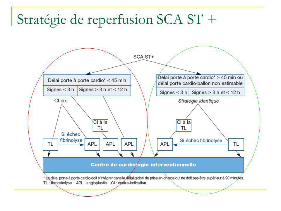 Stratégie de reperfusion SCA ST +