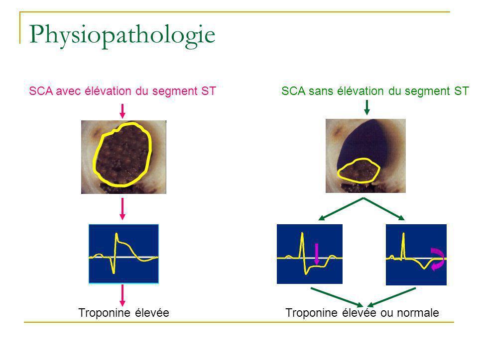 Physiopathologie SCA avec élévation du segment ST