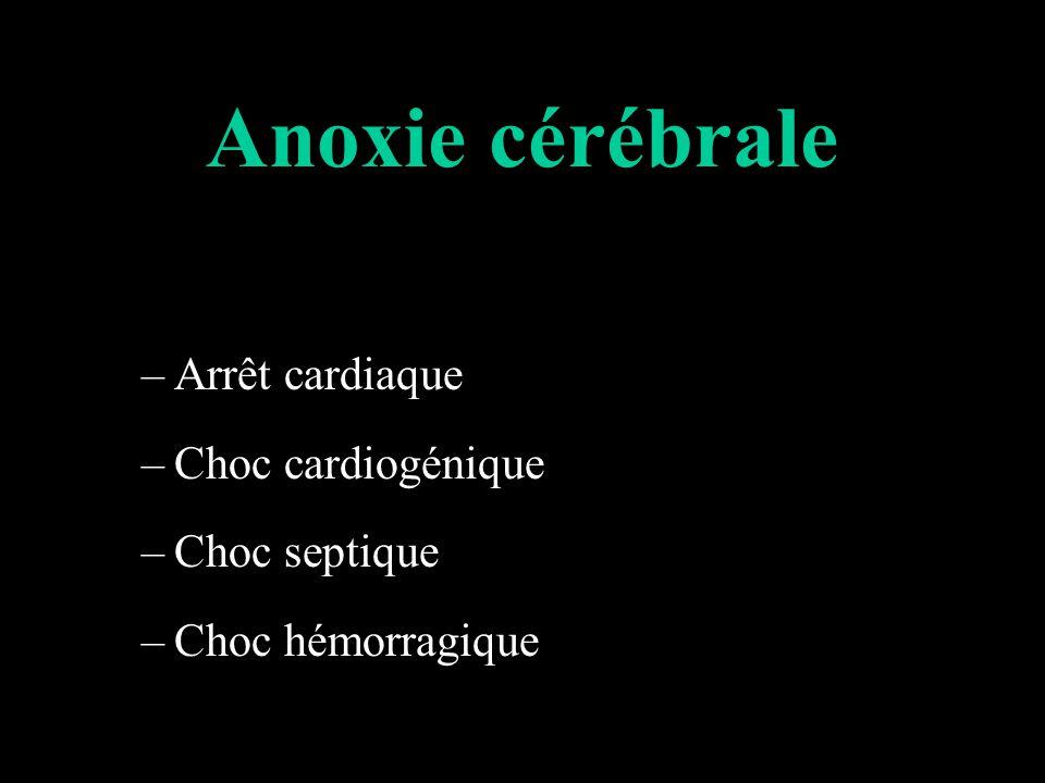 Anoxie cérébrale Arrêt cardiaque Choc cardiogénique Choc septique