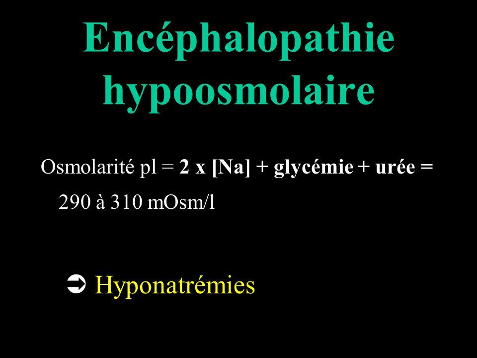 Encéphalopathie hypoosmolaire