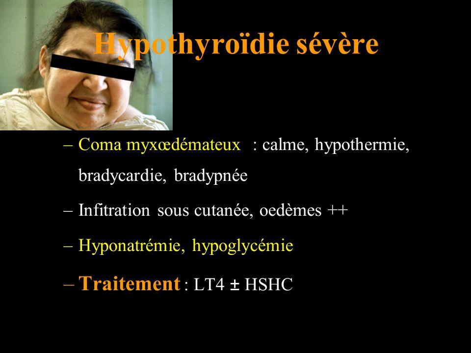Hypothyroïdie sévère Traitement : LT4 ± HSHC
