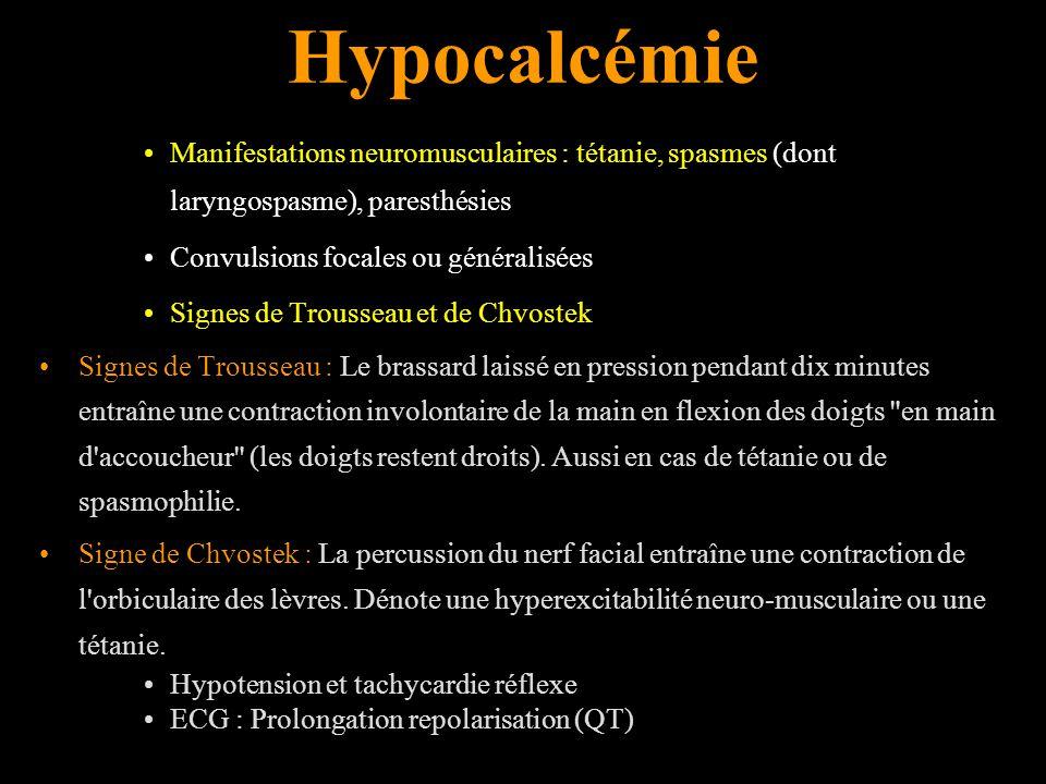 Hypocalcémie Manifestations neuromusculaires : tétanie, spasmes (dont laryngospasme), paresthésies.